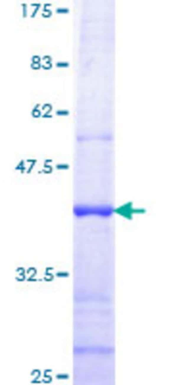 Abnova™Human TMPRSS2 Partial ORF (NP_005647, 383 a.a. - 492 a.a.) Recombinant Protein with GST-tag at N-terminal 25μg Abnova™Human TMPRSS2 Partial ORF (NP_005647, 383 a.a. - 492 a.a.) Recombinant Protein with GST-tag at N-terminal