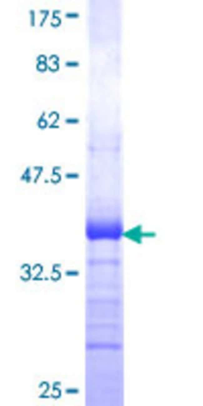 Abnova™ Human TNFRSF1A Partial ORF (NP_001056, 40 a.a. - 149 a.a.) Recombinant Protein with GST-tag at N-terminal 25μg Abnova™ Human TNFRSF1A Partial ORF (NP_001056, 40 a.a. - 149 a.a.) Recombinant Protein with GST-tag at N-terminal