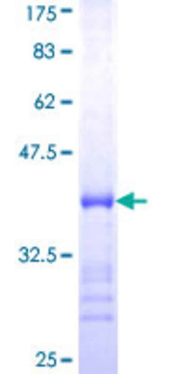 Abnova™Human TP53BP2 Partial ORF (AAH58918, 511 a.a. - 610 a.a.) Recombinant Protein with GST-tag at N-terminal 10μg Abnova™Human TP53BP2 Partial ORF (AAH58918, 511 a.a. - 610 a.a.) Recombinant Protein with GST-tag at N-terminal