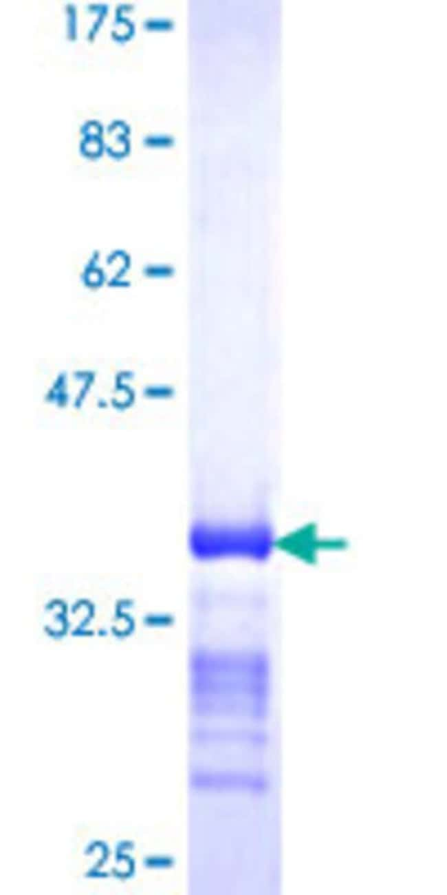 Abnova™Human TPD52 Partial ORF (NP_005070, 100 a.a. - 184 a.a.) Recombinant Protein with GST-tag at N-terminal 25μg Abnova™Human TPD52 Partial ORF (NP_005070, 100 a.a. - 184 a.a.) Recombinant Protein with GST-tag at N-terminal