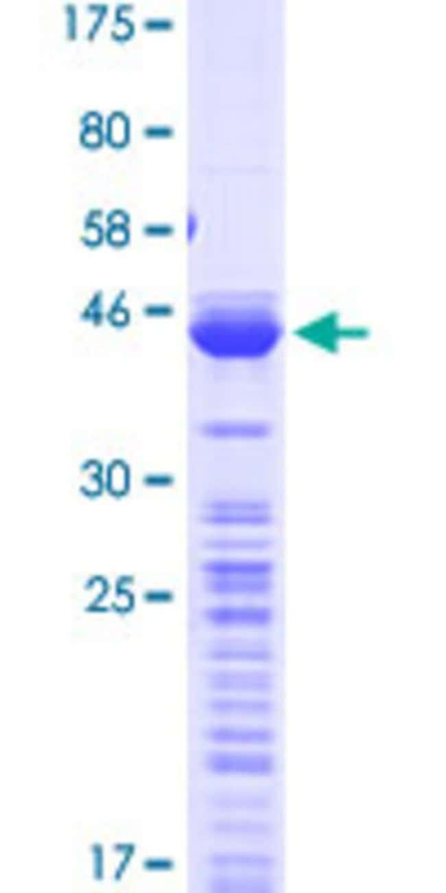 Abnova™Human TPT1 Full-length ORF (NP_003286.1, 1 a.a. - 172 a.a.) Recombinant Protein with GST-tag at N-terminal 25μg Abnova™Human TPT1 Full-length ORF (NP_003286.1, 1 a.a. - 172 a.a.) Recombinant Protein with GST-tag at N-terminal