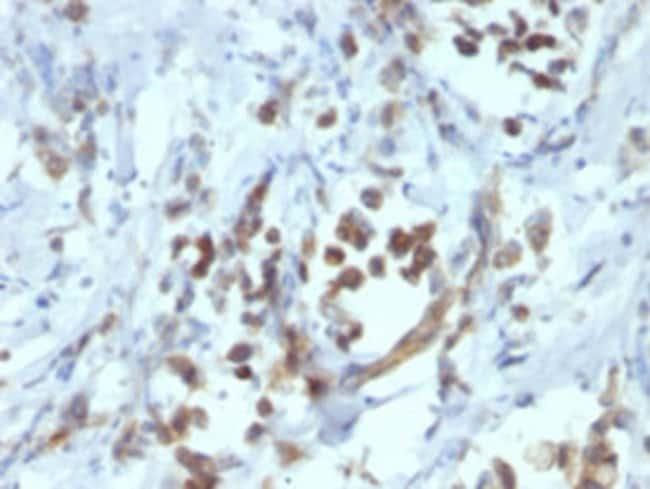 PAX6 Mouse anti-Human, Clone: PAX6/1166, Abnova 100μg; Unlabeled:Antibodies