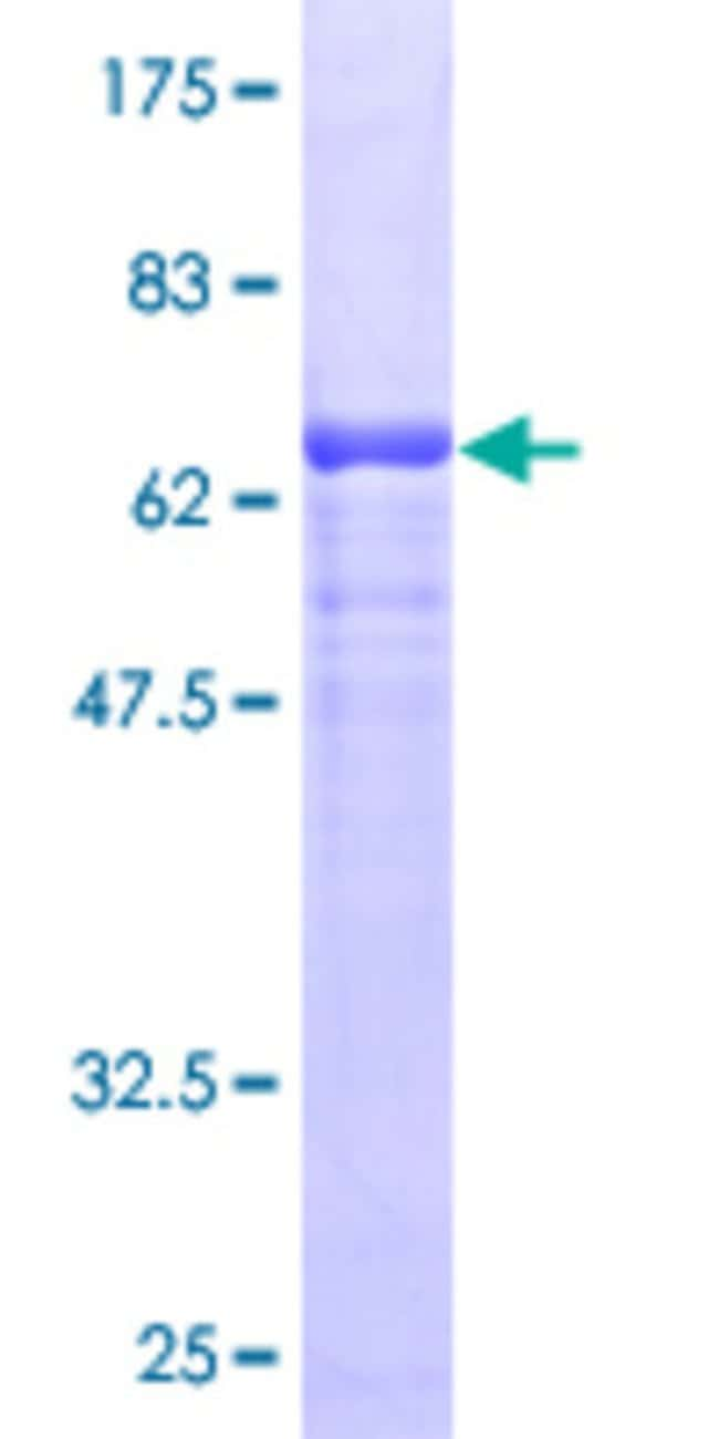 Abnova™ Human TRA1 Full-length ORF (AAH09195.1, 1 a.a. - 315 a.a.) Recombinant Protein with GST-tag at N-terminal 10μg Abnova™ Human TRA1 Full-length ORF (AAH09195.1, 1 a.a. - 315 a.a.) Recombinant Protein with GST-tag at N-terminal