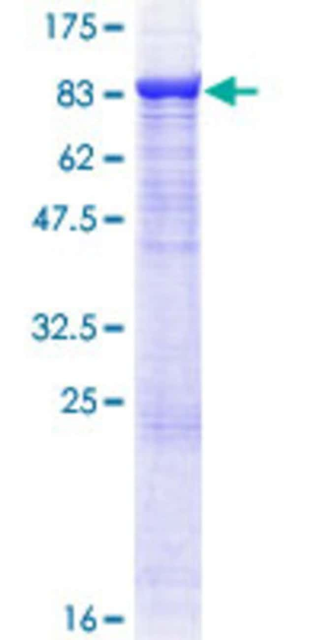 Abnova™Human TRAF3 Full-length ORF (NP_003291.2, 1 a.a. - 568 a.a.) Recombinant Protein with GST-tag at N-terminal 25μg Abnova™Human TRAF3 Full-length ORF (NP_003291.2, 1 a.a. - 568 a.a.) Recombinant Protein with GST-tag at N-terminal