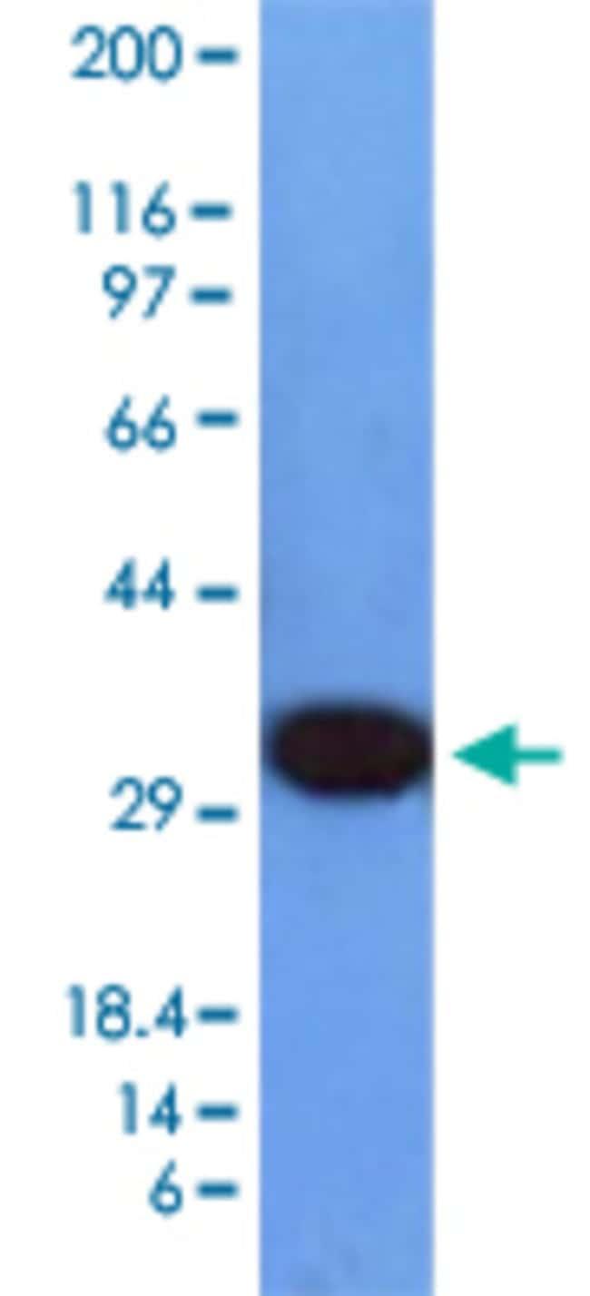 PCNA Mouse anti-Human, Clone: PCNA/694, Abnova 100μg; Unlabeled:Antibodies