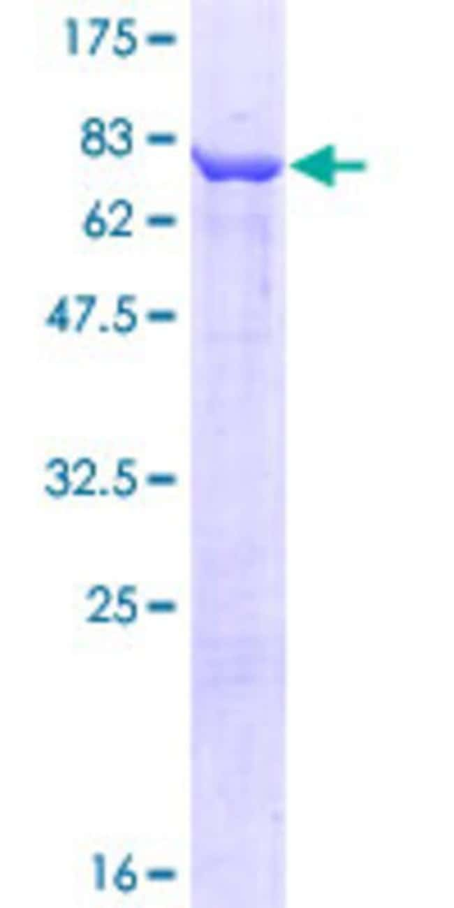 Abnova™Human CCT3 Full-length ORF (AAH08019.1, 1 a.a. - 544 a.a.) Recombinant Protein with GST-tag at N-terminal 25μg Abnova™Human CCT3 Full-length ORF (AAH08019.1, 1 a.a. - 544 a.a.) Recombinant Protein with GST-tag at N-terminal