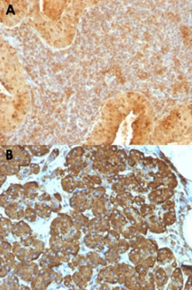 CYCS Mouse anti-Human, Pigeon, Clone: 7H8.2C12, Abnova 100μg; Unlabeled:Antibodies