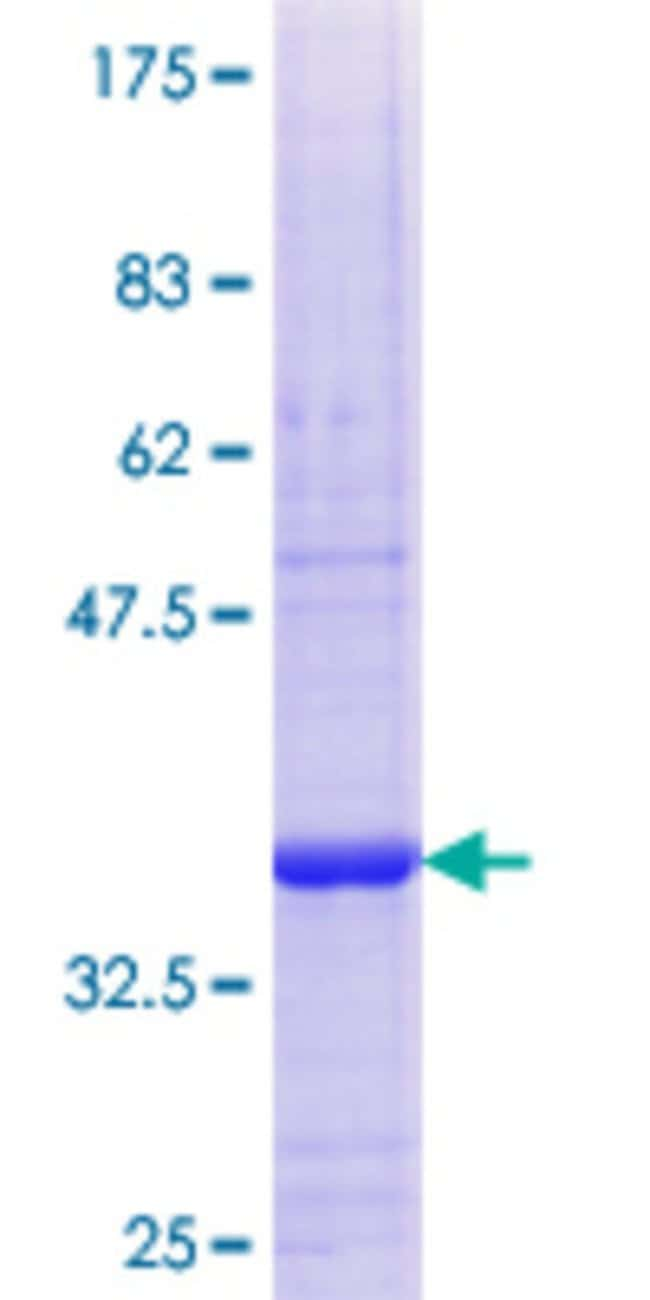 Abnova™Human TSNAX Partial ORF (NP_005990.1, 191 a.a. - 290 a.a.) Recombinant Protein with GST-tag at N-terminal 25μg Abnova™Human TSNAX Partial ORF (NP_005990.1, 191 a.a. - 290 a.a.) Recombinant Protein with GST-tag at N-terminal