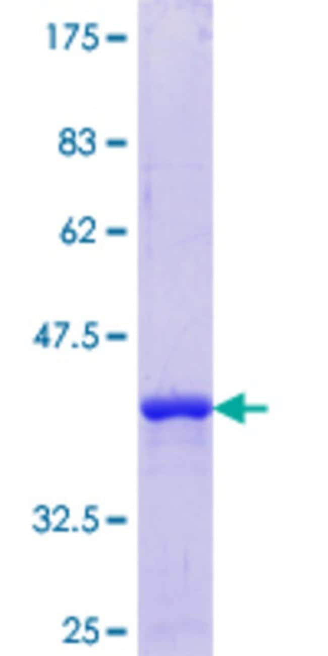 Abnova™Human TSPYL1 Partial ORF (NP_003300.1, 1 a.a. - 100 a.a.) Recombinant Protein with GST-tag at N-terminal 10μg Abnova™Human TSPYL1 Partial ORF (NP_003300.1, 1 a.a. - 100 a.a.) Recombinant Protein with GST-tag at N-terminal