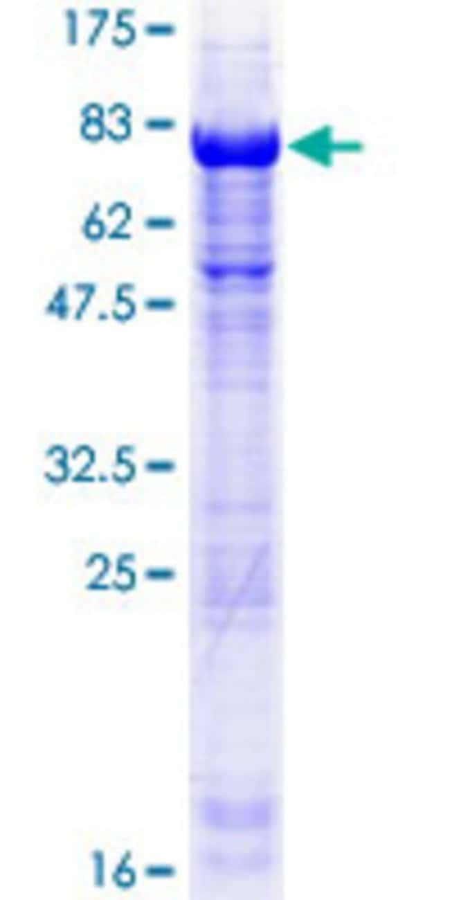 Abnova™Human TSSC1 Full-length ORF (NP_003301.1, 1 a.a. - 387 a.a.) Recombinant Protein with GST-tag at N-terminal 25μg Abnova™Human TSSC1 Full-length ORF (NP_003301.1, 1 a.a. - 387 a.a.) Recombinant Protein with GST-tag at N-terminal