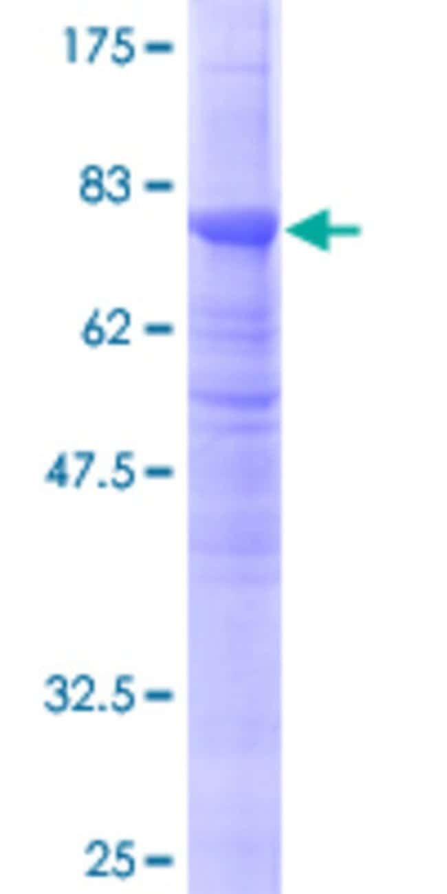 Abnova™Human TUBB2A Full-length ORF (AAH18780, 1 a.a. - 445 a.a.) Recombinant Protein with GST-tag at N-terminal 25μg Abnova™Human TUBB2A Full-length ORF (AAH18780, 1 a.a. - 445 a.a.) Recombinant Protein with GST-tag at N-terminal