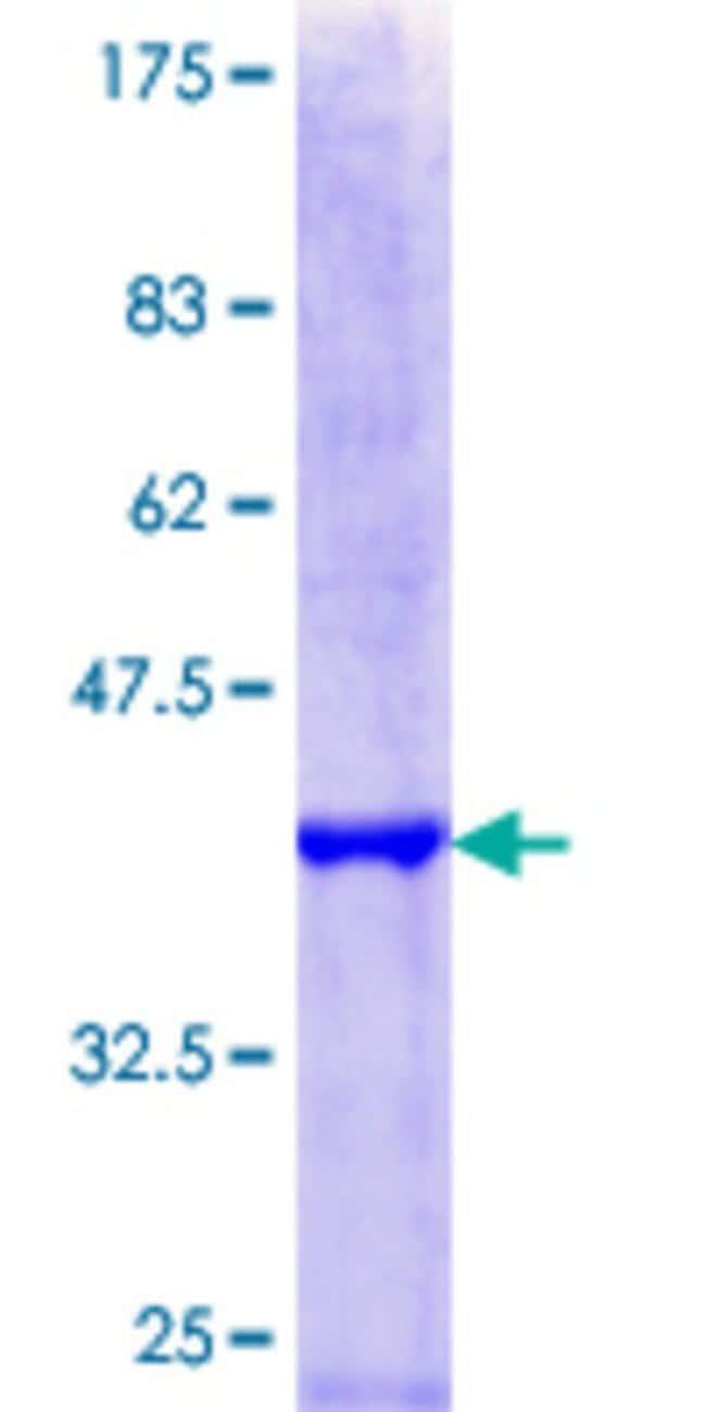 Abnova Human HIRA Partial ORF (NP_003316.3, 908 a.a. - 1017 a.a.) Recombinant
