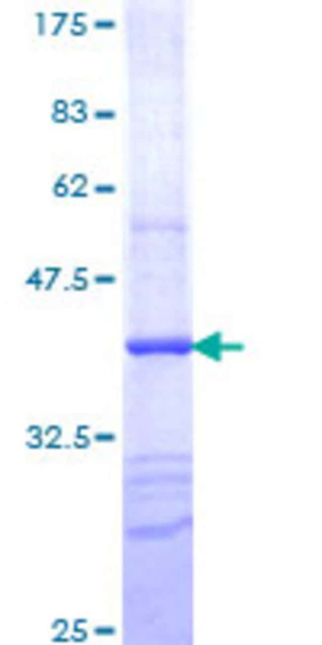 Abnova™Human TXK Partial ORF (NP_003319, 131 a.a. - 230 a.a.) Recombinant Protein with GST-tag at N-terminal 25μg Abnova™Human TXK Partial ORF (NP_003319, 131 a.a. - 230 a.a.) Recombinant Protein with GST-tag at N-terminal
