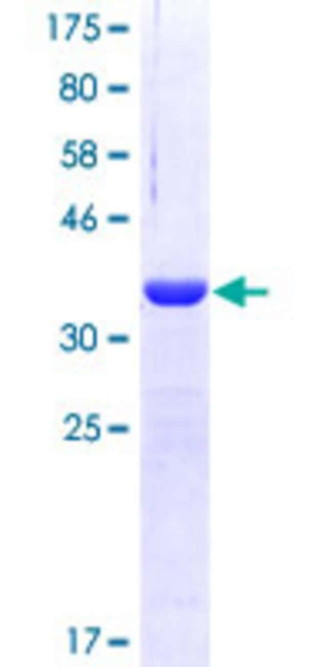 Abnova™Human TYK2 Partial ORF (AAH14243, 276 a.a. - 375 a.a.) Recombinant Protein with GST-tag at N-terminal 25μg Abnova™Human TYK2 Partial ORF (AAH14243, 276 a.a. - 375 a.a.) Recombinant Protein with GST-tag at N-terminal