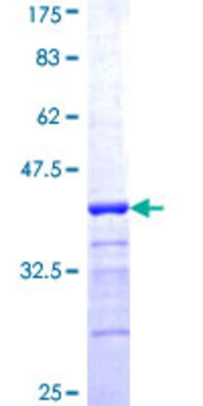 Abnova™Human UCHL1 Partial ORF (NP_004172, 101 a.a. - 190 a.a.) Recombinant Protein with GST-tag at N-terminal 25μg Abnova™Human UCHL1 Partial ORF (NP_004172, 101 a.a. - 190 a.a.) Recombinant Protein with GST-tag at N-terminal