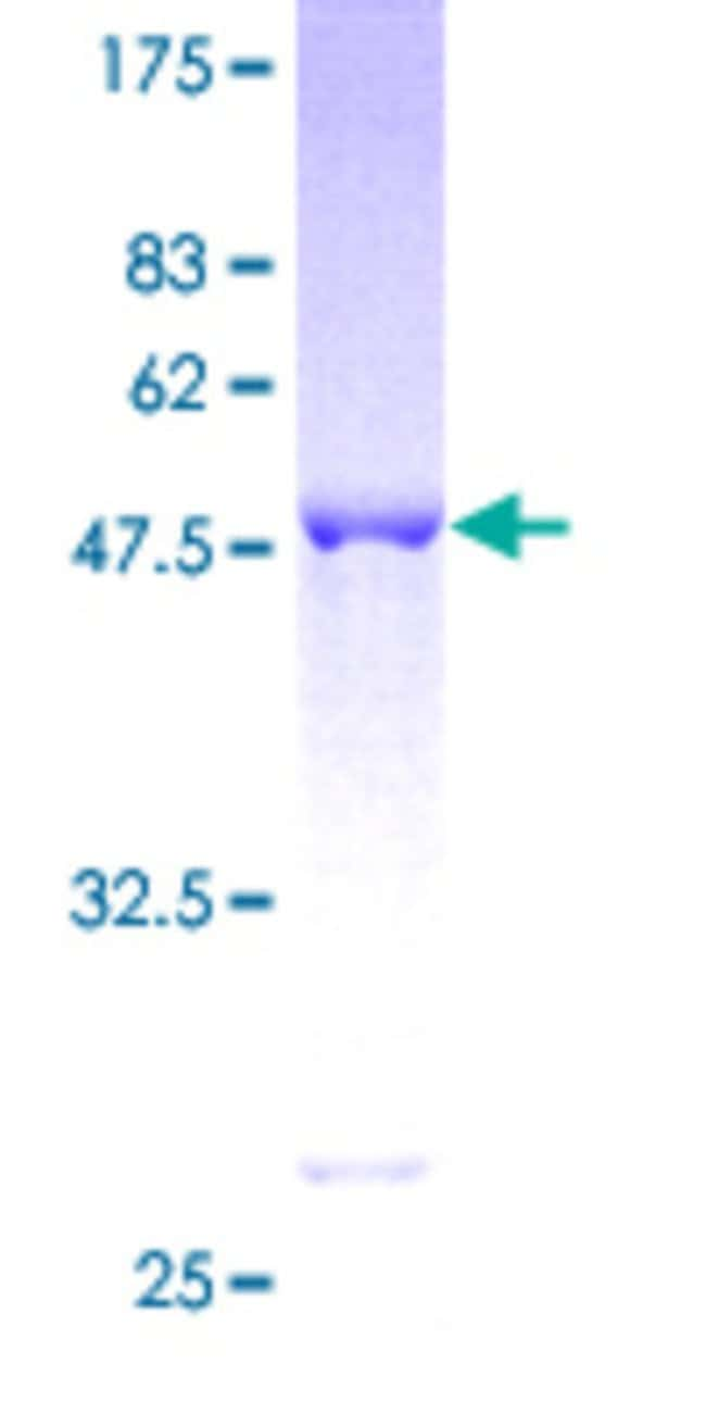 Abnova™Human UCHL3 Full-length ORF (AAH18125, 1 a.a. - 230 a.a.) Recombinant Protein with GST-tag at N-terminal 10μg Abnova™Human UCHL3 Full-length ORF (AAH18125, 1 a.a. - 230 a.a.) Recombinant Protein with GST-tag at N-terminal