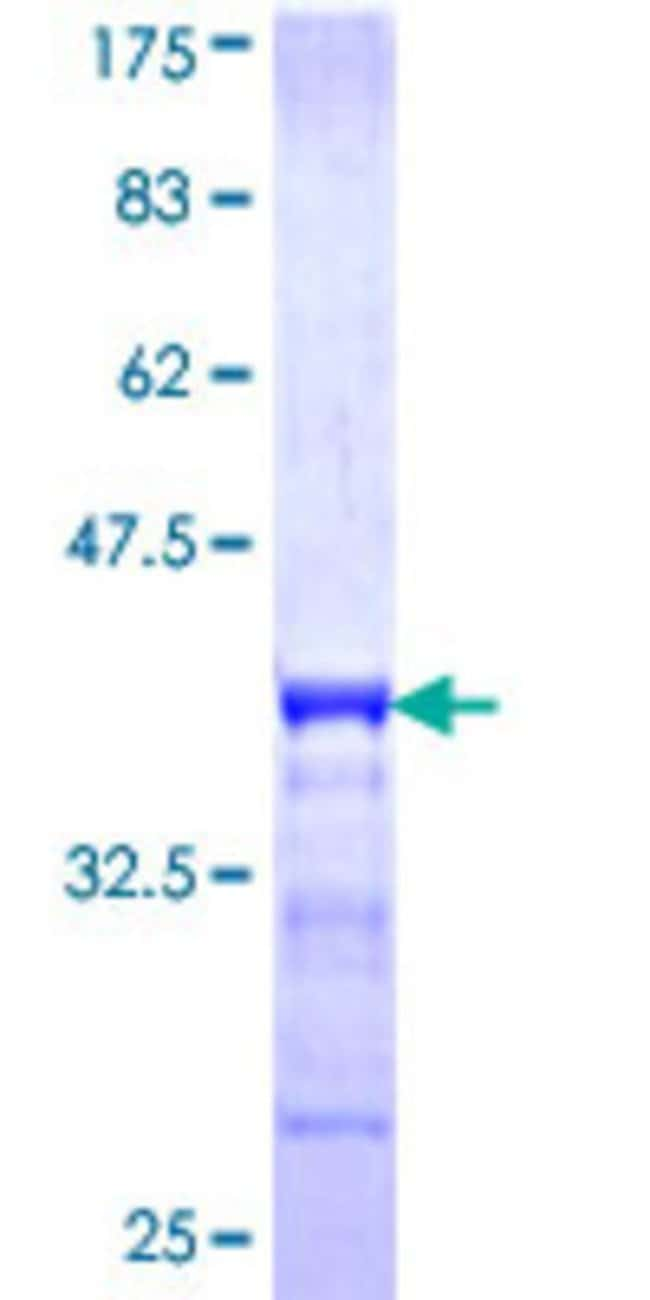 Abnova™Human UPK1B Partial ORF (NP_008883, 131 a.a. - 228 a.a.) Recombinant Protein with GST-tag at N-terminal 25μg Abnova™Human UPK1B Partial ORF (NP_008883, 131 a.a. - 228 a.a.) Recombinant Protein with GST-tag at N-terminal