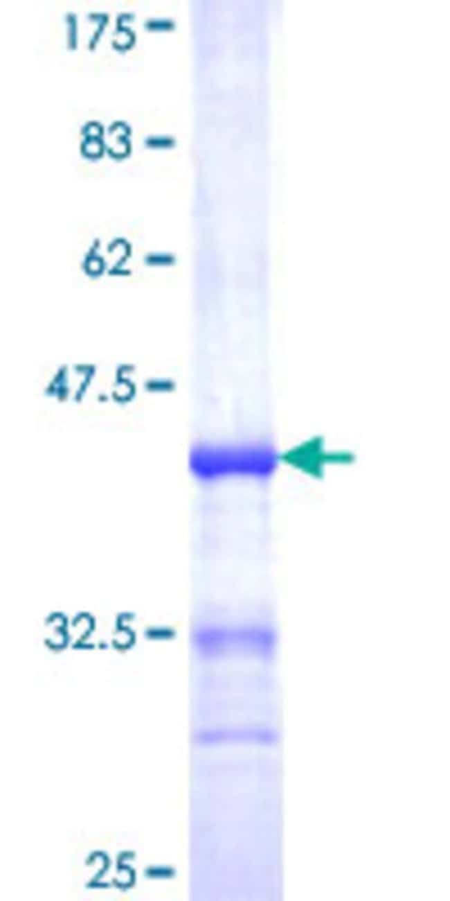 Abnova™Human UMPS Partial ORF (NP_000364, 381 a.a. - 479 a.a.) Recombinant Protein with GST-tag at N-terminal 25μg Abnova™Human UMPS Partial ORF (NP_000364, 381 a.a. - 479 a.a.) Recombinant Protein with GST-tag at N-terminal