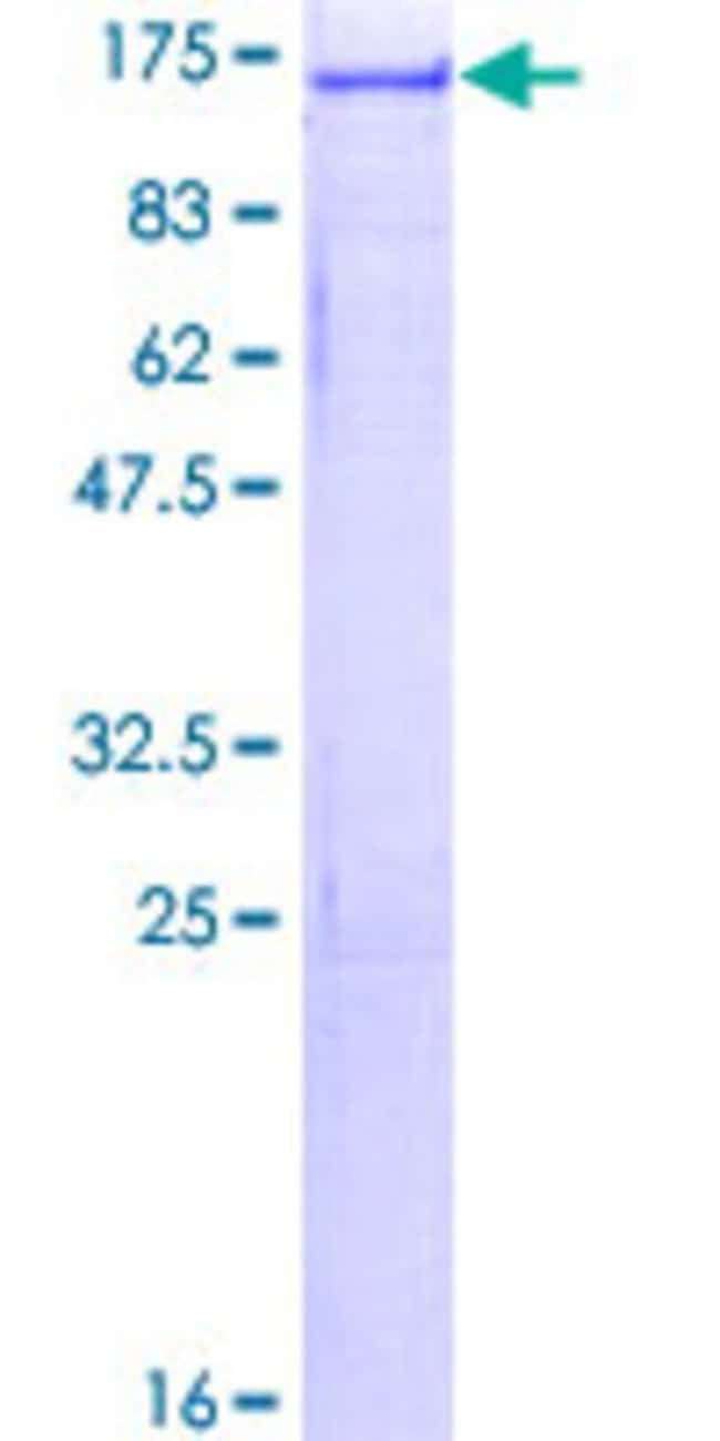Abnova™ Human USP4 Full-length ORF (NP_003354.2, 1 a.a. - 963 a.a.) Recombinant Protein with GST-tag at N-terminal 25μg Abnova™ Human USP4 Full-length ORF (NP_003354.2, 1 a.a. - 963 a.a.) Recombinant Protein with GST-tag at N-terminal