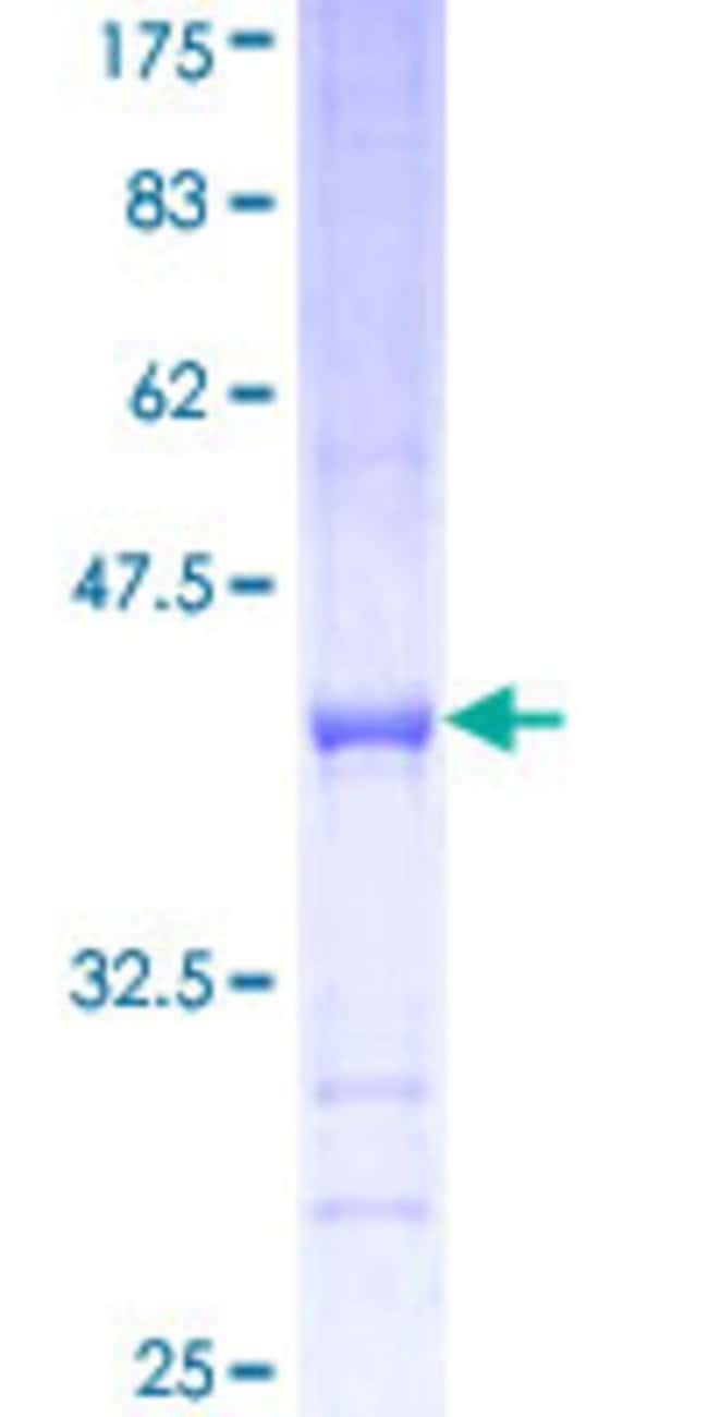 Abnova™Human VARS Partial ORF (NP_006286, 994 a.a. - 1102 a.a.) Recombinant Protein with GST-tag at N-terminal 10μg Abnova™Human VARS Partial ORF (NP_006286, 994 a.a. - 1102 a.a.) Recombinant Protein with GST-tag at N-terminal