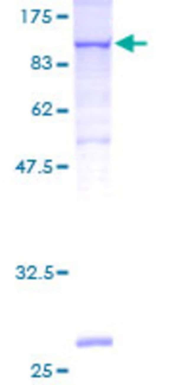 Abnova™Human VCAM1 Full-length ORF (AAH17276, 1 a.a. - 739 a.a.) Recombinant Protein with GST-tag at N-terminal 10μg Abnova™Human VCAM1 Full-length ORF (AAH17276, 1 a.a. - 739 a.a.) Recombinant Protein with GST-tag at N-terminal