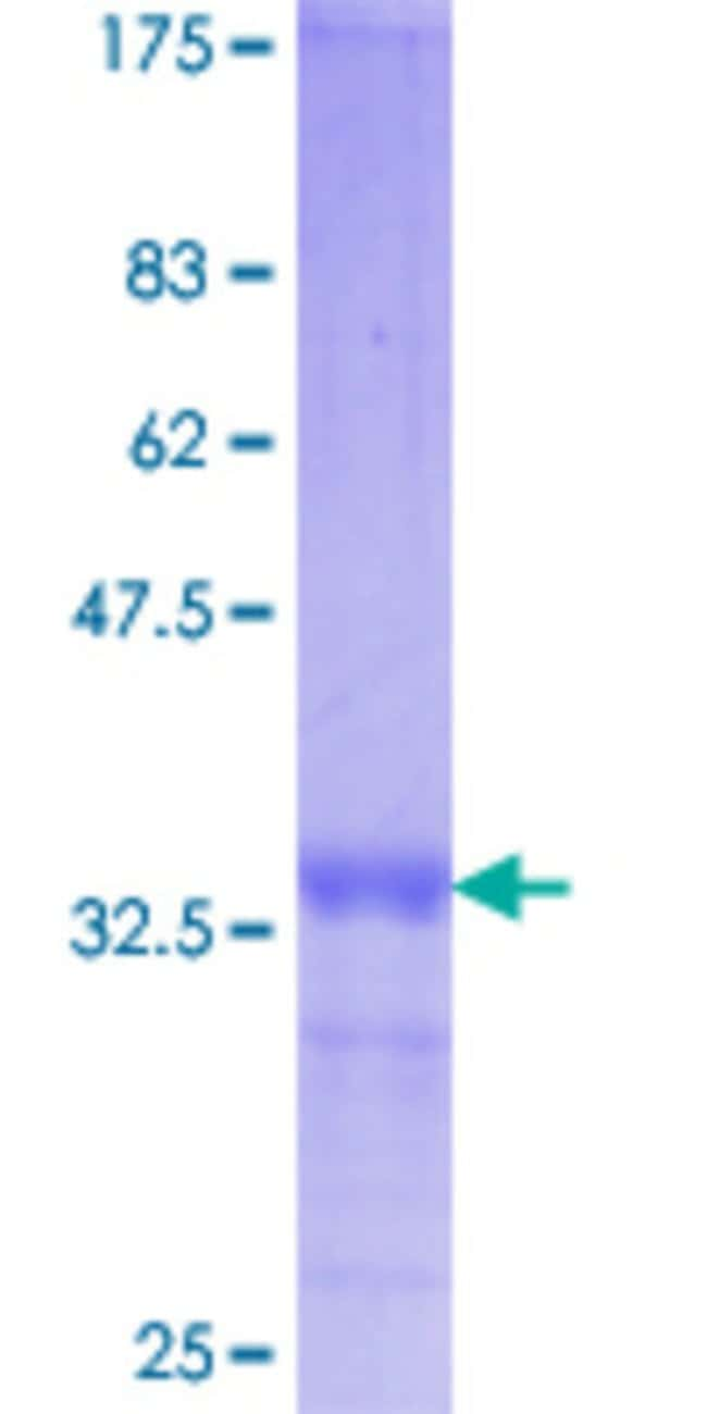Abnova™ Human VDAC1 Partial ORF (AAH08482.1, 64 a.a. - 145 a.a.) Recombinant Protein with GST-tag at N-terminal 25μg Abnova™ Human VDAC1 Partial ORF (AAH08482.1, 64 a.a. - 145 a.a.) Recombinant Protein with GST-tag at N-terminal