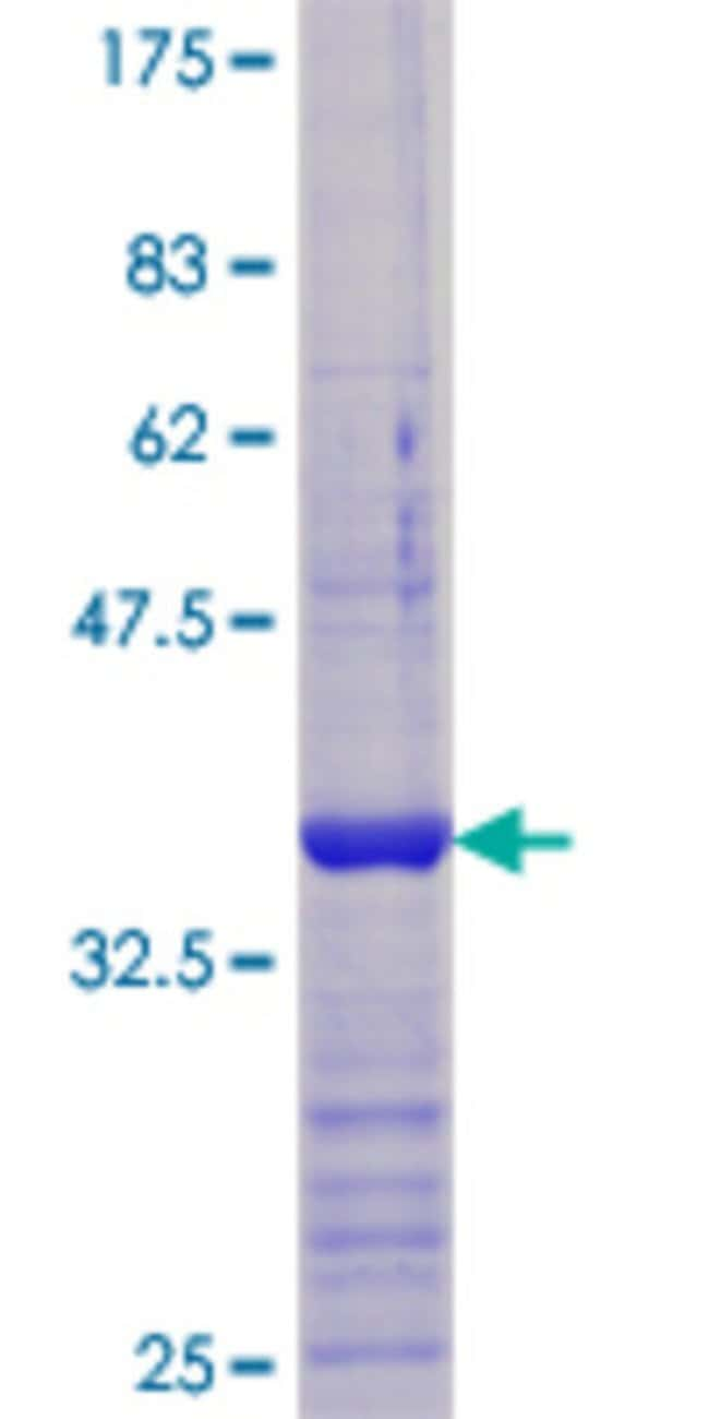 Abnova™ Human VDAC1 Partial ORF (AAH08482.1, 156 a.a. - 276 a.a.) Recombinant Protein with GST-tag at N-terminal 25μg Abnova™ Human VDAC1 Partial ORF (AAH08482.1, 156 a.a. - 276 a.a.) Recombinant Protein with GST-tag at N-terminal