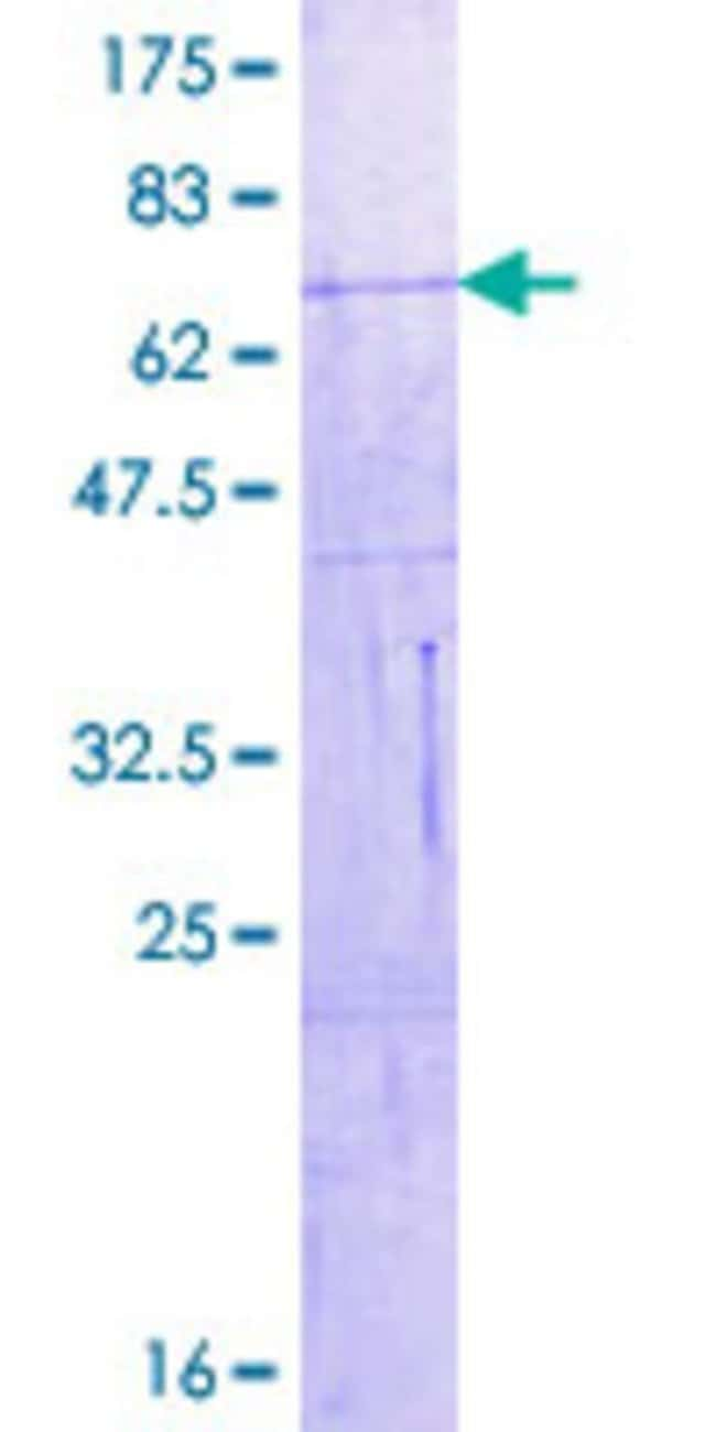 Abnova™Human VIL1 Full-length ORF (AAH17303.1, 1 a.a. - 421 a.a.) Recombinant Protein with GST-tag at N-terminal 25μg Abnova™Human VIL1 Full-length ORF (AAH17303.1, 1 a.a. - 421 a.a.) Recombinant Protein with GST-tag at N-terminal