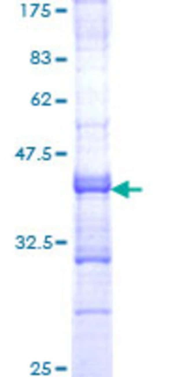 Abnova™Human VIPR2 Partial ORF (NP_003373, 24 a.a. - 126 a.a.) Recombinant Protein with GST-tag at N-terminal 10μg Abnova™Human VIPR2 Partial ORF (NP_003373, 24 a.a. - 126 a.a.) Recombinant Protein with GST-tag at N-terminal