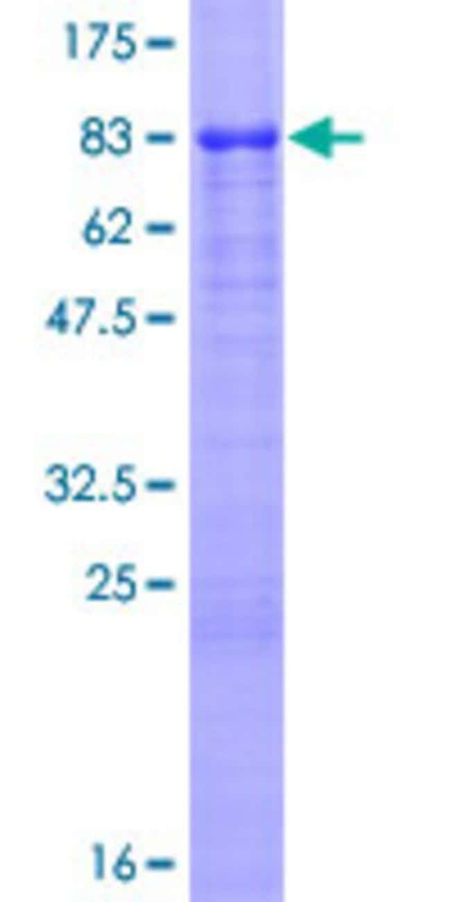 Abnova™Human VTN Full-length ORF (AAH05046.1, 1 a.a. - 478 a.a.) Recombinant Protein with GST-tag at N-terminal 25μg Abnova™Human VTN Full-length ORF (AAH05046.1, 1 a.a. - 478 a.a.) Recombinant Protein with GST-tag at N-terminal