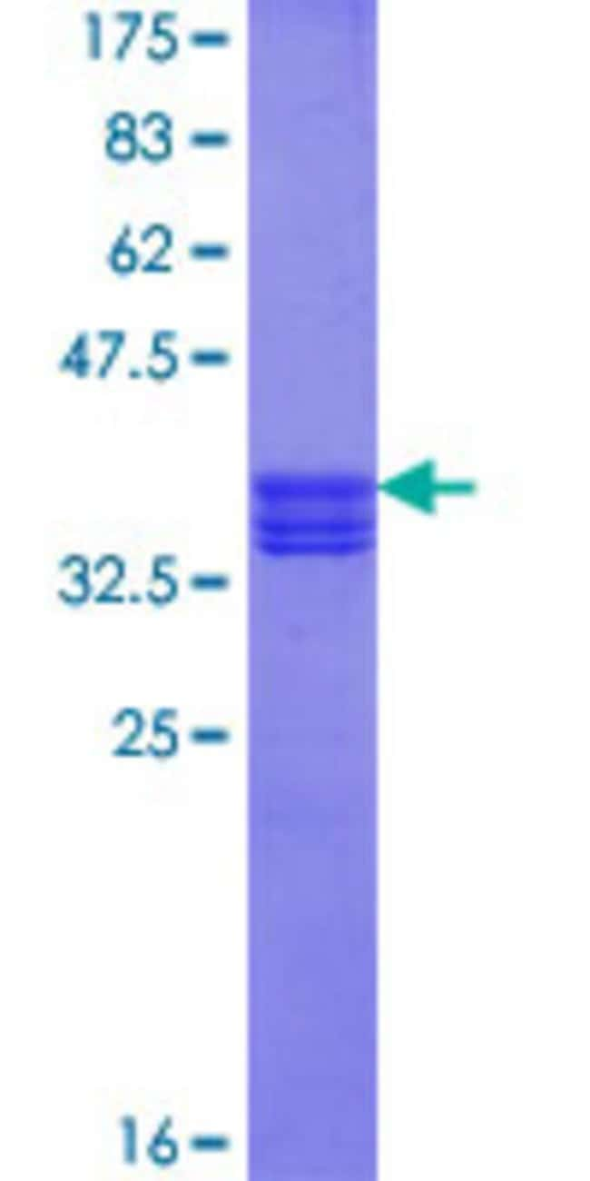 Abnova™Human ZAN Partial ORF (NP_003377.1, 19 a.a. - 113 a.a.) Recombinant Protein with GST-tag at N-terminal 10μg Abnova™Human ZAN Partial ORF (NP_003377.1, 19 a.a. - 113 a.a.) Recombinant Protein with GST-tag at N-terminal