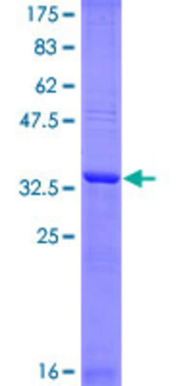 Abnova™Human WEE1 Partial ORF (NP_003381, 289 a.a. - 388 a.a.) Recombinant Protein with GST-tag at N-terminal 25μg Abnova™Human WEE1 Partial ORF (NP_003381, 289 a.a. - 388 a.a.) Recombinant Protein with GST-tag at N-terminal