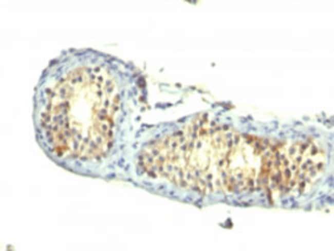 TGFA Mouse anti-Human, Clone: 1E8-G6, Abnova 100μg; Unlabeled:Antibodies