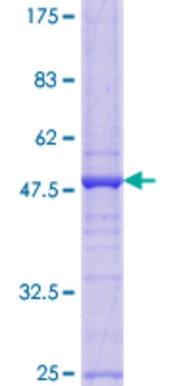 Abnova™ Human XG Full-length ORF (AAI00768.1, 1 a.a. - 181 a.a.) Recombinant Protein with GST-tag at N-terminal 10μg Abnova™ Human XG Full-length ORF (AAI00768.1, 1 a.a. - 181 a.a.) Recombinant Protein with GST-tag at N-terminal