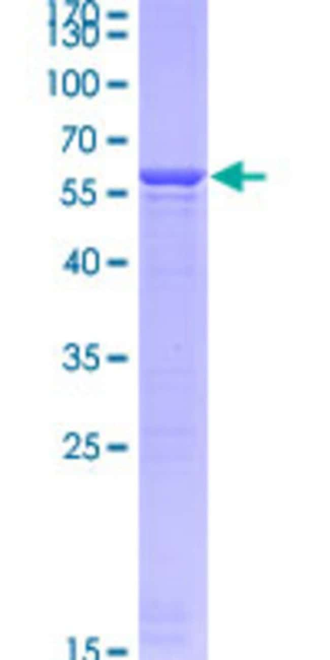 Abnova™Human YWHAH Full-length ORF (BAG35533.1, 1 a.a. - 246 a.a.) Recombinant Protein with GST-tag at N-terminal 10μg Abnova™Human YWHAH Full-length ORF (BAG35533.1, 1 a.a. - 246 a.a.) Recombinant Protein with GST-tag at N-terminal