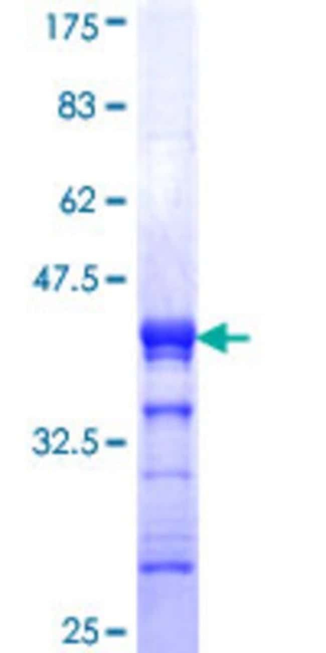 Abnova™Human ZNF7 Partial ORF (NP_003407, 67 a.a. - 165 a.a.) Recombinant Protein with GST-tag at N-terminal 25μg Abnova™Human ZNF7 Partial ORF (NP_003407, 67 a.a. - 165 a.a.) Recombinant Protein with GST-tag at N-terminal