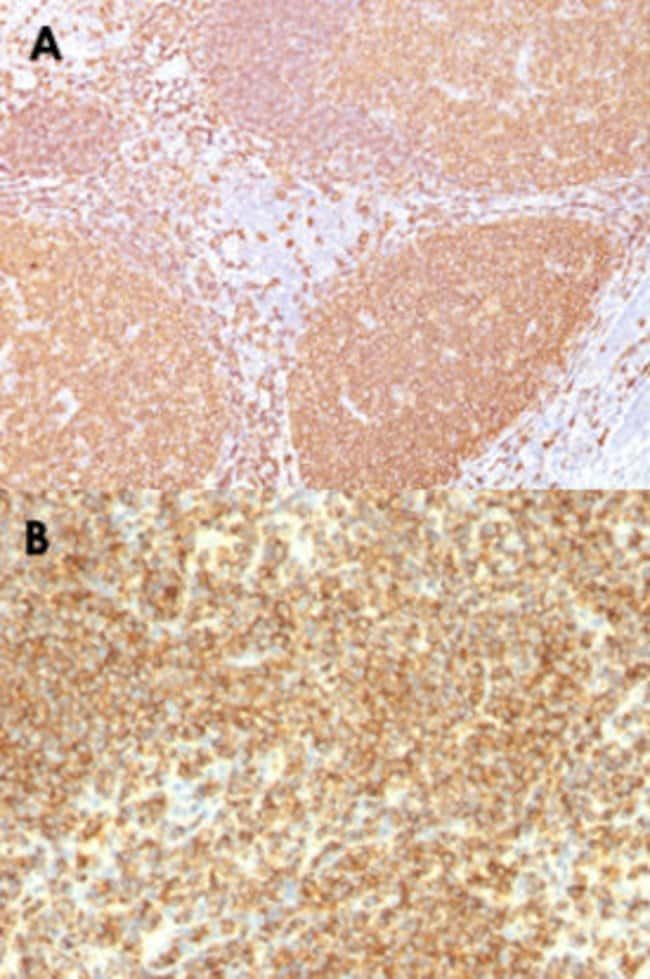 MS4A1 Mouse anti-Human, Clone: IGEL/773, Abnova 100μg; Unlabeled:Antibodies