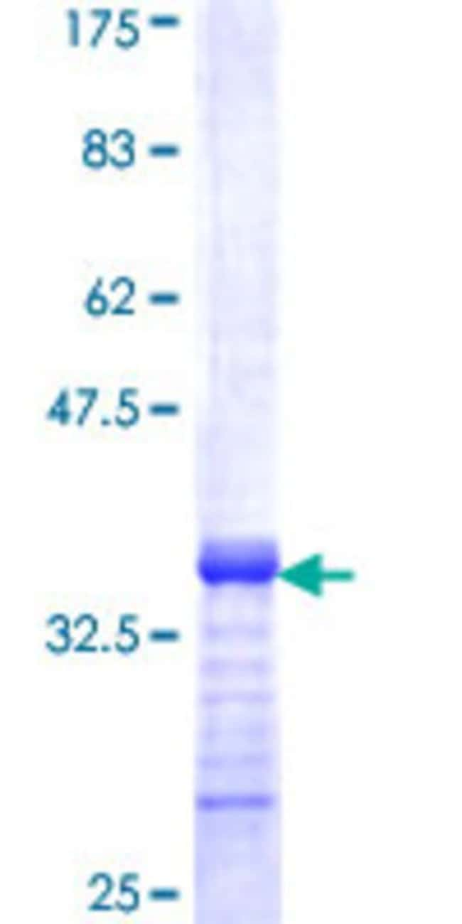 Abnova™Human ZNF14 Partial ORF (NP_066358, 70 a.a. - 161 a.a.) Recombinant Protein with GST-tag at N-terminal 10μg Abnova™Human ZNF14 Partial ORF (NP_066358, 70 a.a. - 161 a.a.) Recombinant Protein with GST-tag at N-terminal