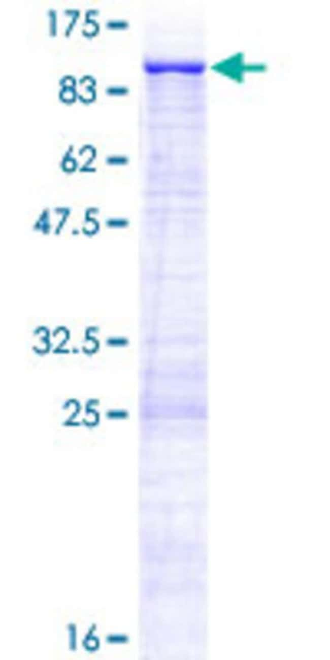 Abnova™Human ZNF182 Full-length ORF (NP_001007089.1, 1 a.a. - 620 a.a.) Recombinant Protein with GST-tag at N-terminal 10μg Abnova™Human ZNF182 Full-length ORF (NP_001007089.1, 1 a.a. - 620 a.a.) Recombinant Protein with GST-tag at N-terminal