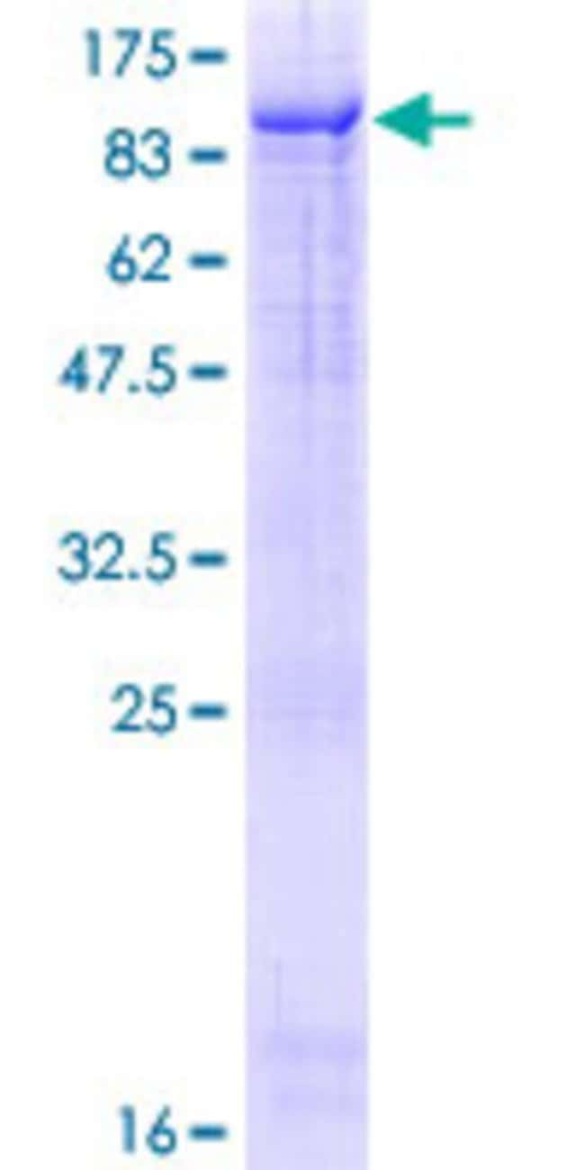 Abnova™Human ZKSCAN1 Full-length ORF (AAH22378.1, 1 a.a. - 563 a.a.) Recombinant Protein with GST-tag at N-terminal 10μg Abnova™Human ZKSCAN1 Full-length ORF (AAH22378.1, 1 a.a. - 563 a.a.) Recombinant Protein with GST-tag at N-terminal