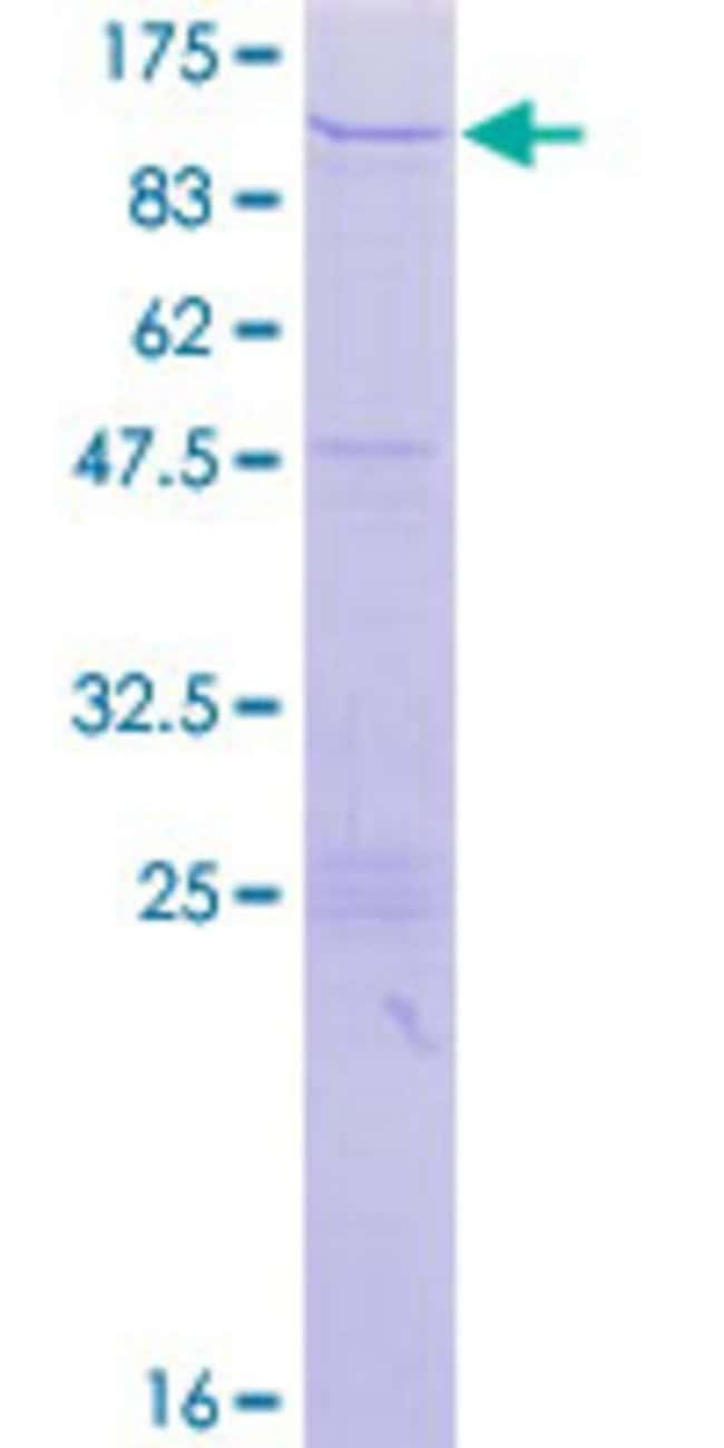 Abnova™Human ZNF84 Full-length ORF (AAH62552.1, 1 a.a. - 738 a.a.) Recombinant Protein with GST-tag at N-terminal 25μg Abnova™Human ZNF84 Full-length ORF (AAH62552.1, 1 a.a. - 738 a.a.) Recombinant Protein with GST-tag at N-terminal