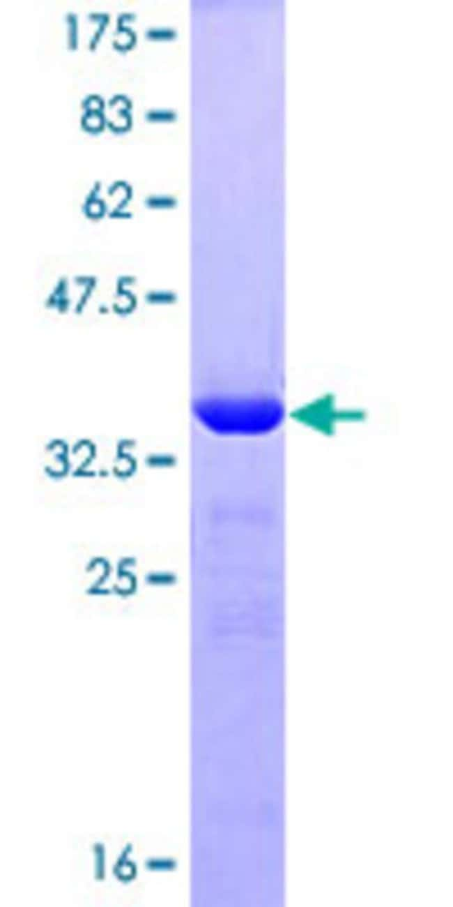 Abnova™Human ZNF148 Partial ORF (NP_068799, 695 a.a. - 794 a.a.) Recombinant Protein with GST-tag at N-terminal 10μg Abnova™Human ZNF148 Partial ORF (NP_068799, 695 a.a. - 794 a.a.) Recombinant Protein with GST-tag at N-terminal