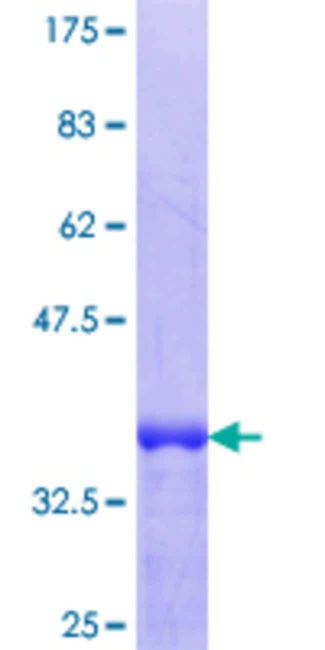Abnova™Human TRIM26 Partial ORF (NP_003440.1, 146 a.a. - 240 a.a.) Recombinant Protein with GST-tag at N-terminal 25μg Abnova™Human TRIM26 Partial ORF (NP_003440.1, 146 a.a. - 240 a.a.) Recombinant Protein with GST-tag at N-terminal