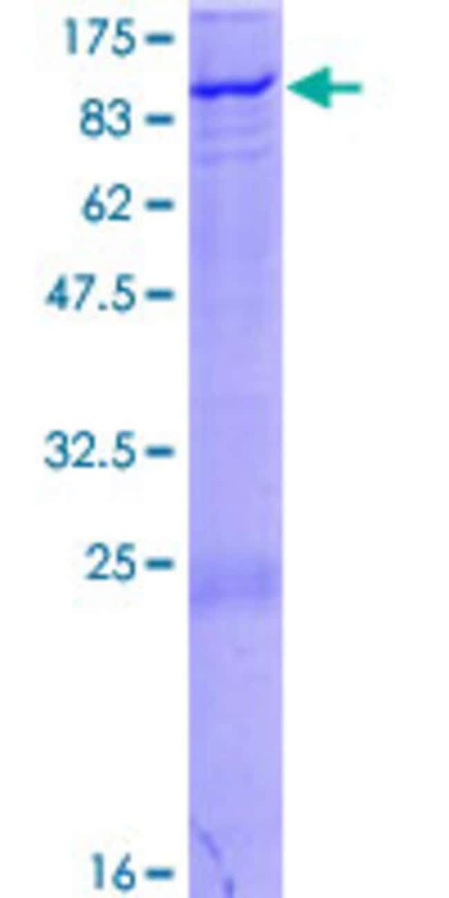 Abnova™Human ZNF175 Full-length ORF (NP_009078.1, 1 a.a. - 711 a.a.) Recombinant Protein with GST-tag at N-terminal 10μg Abnova™Human ZNF175 Full-length ORF (NP_009078.1, 1 a.a. - 711 a.a.) Recombinant Protein with GST-tag at N-terminal