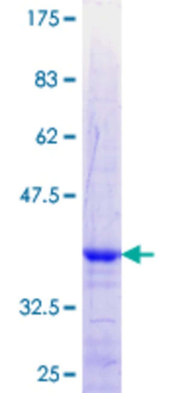 Abnova™Human ZNF180 Partial ORF (NP_037388.1, 176 a.a. - 285 a.a.) Recombinant Protein with GST-tag at N-terminal 25μg Abnova™Human ZNF180 Partial ORF (NP_037388.1, 176 a.a. - 285 a.a.) Recombinant Protein with GST-tag at N-terminal