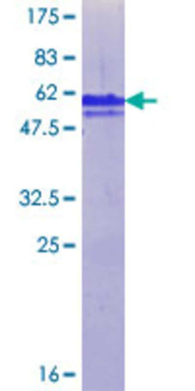 Abnova™Human ZNF198 Partial ORF (NP_003444.1, 971 a.a. - 1069 a.a.) Recombinant Protein with GST-tag at N-terminal 10μg Abnova™Human ZNF198 Partial ORF (NP_003444.1, 971 a.a. - 1069 a.a.) Recombinant Protein with GST-tag at N-terminal