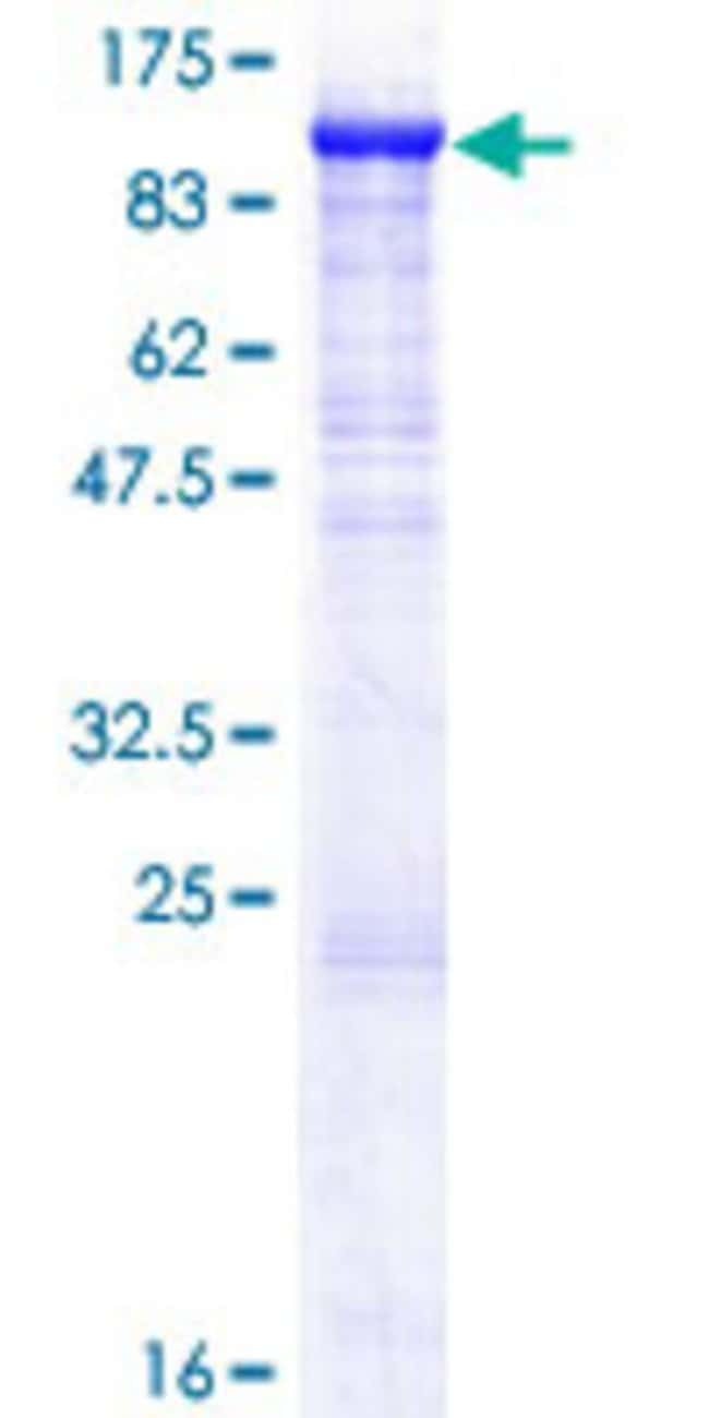 Abnova™Human ZP2 Full-length ORF (AAH96305.1, 1 a.a. - 736 a.a.) Recombinant Protein with GST-tag at N-terminal 25μg Abnova™Human ZP2 Full-length ORF (AAH96305.1, 1 a.a. - 736 a.a.) Recombinant Protein with GST-tag at N-terminal