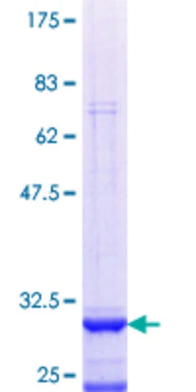 Abnova Human LAPTM5 Partial ORF (NP_006753.1, 207 a.a. - 262 a.a.) Recombinant