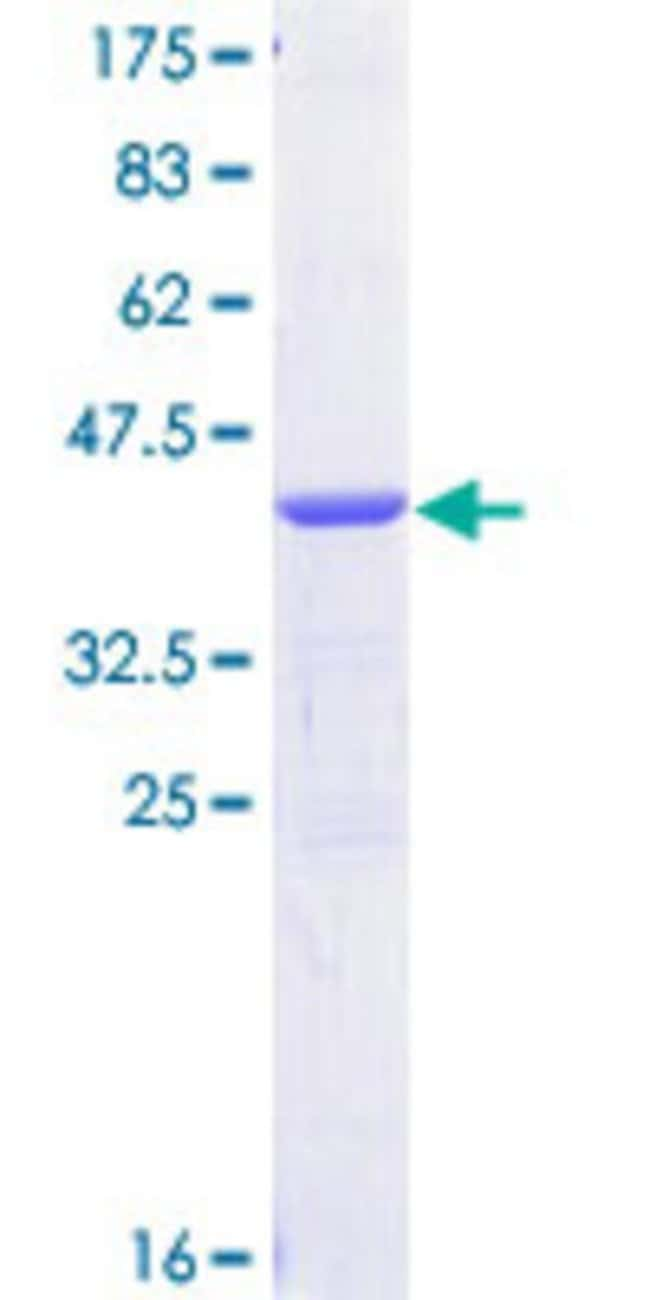 Abnova™Human UNR Partial ORF (NP_009089, 670 a.a. - 765 a.a.) Recombinant Protein with GST-tag at N-terminal 10μg Abnova™Human UNR Partial ORF (NP_009089, 670 a.a. - 765 a.a.) Recombinant Protein with GST-tag at N-terminal