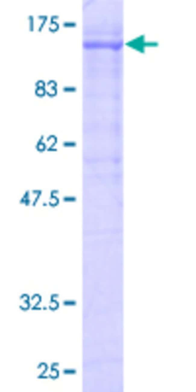 Abnova™Human RNF103 Full-length ORF (AAH35053, 1 a.a. - 685 a.a.) Recombinant Protein with GST-tag at N-terminal 10μg Abnova™Human RNF103 Full-length ORF (AAH35053, 1 a.a. - 685 a.a.) Recombinant Protein with GST-tag at N-terminal